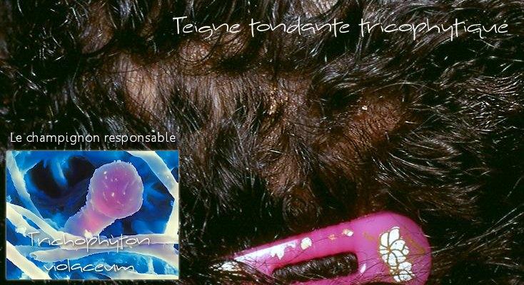 Teigne tondante Trichophyton violaceum
